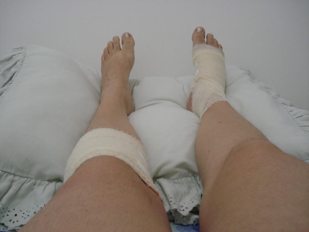 Resultado da queda: pé direito luxado e jolelho e perna esquerda esfolados...